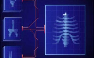 Zebra Medical Vision is Transforming Healthcare